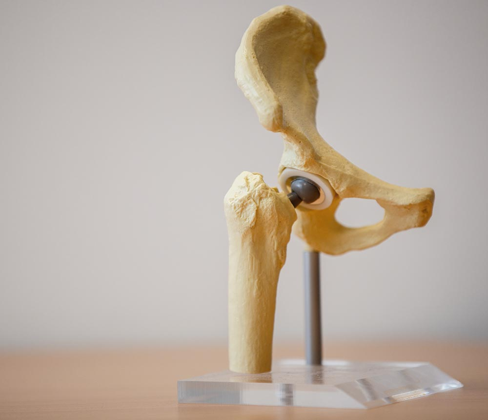 Total Hip Replacement Sydney