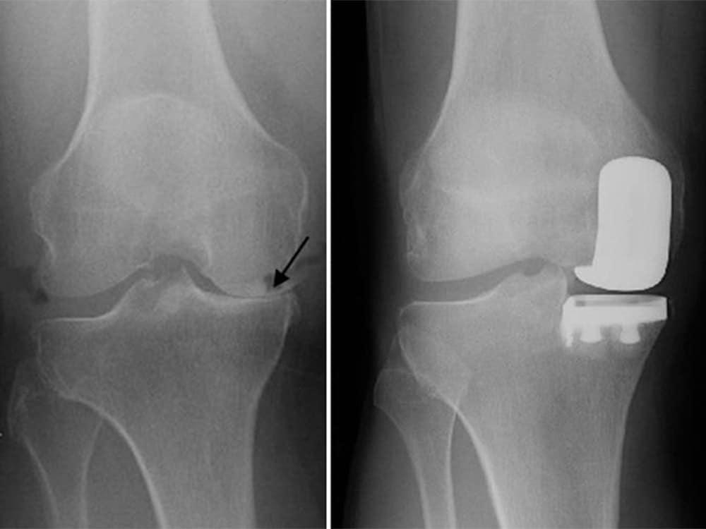 Uni knee surgery sydney
